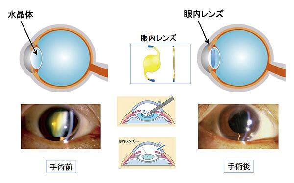 人工の透明な眼内レンズ